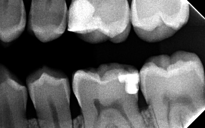 Chronique dentaire: pour faire la lumière sur les radiographies dentaires